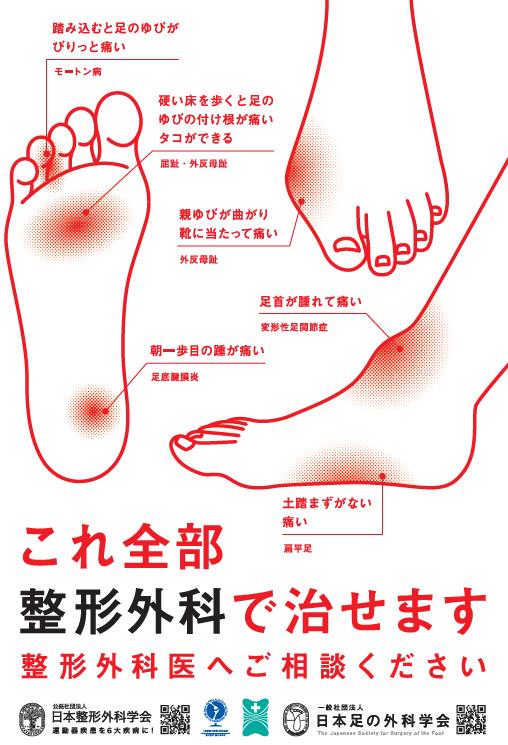 付け根 腫れ 指 足